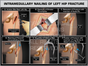 Exhibit of Intramedullary Nailing of Left Hip Fracture- Print Quality Instant Download