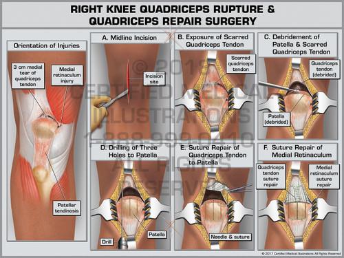 Exhibit of Right Knee Quadriceps Rupture & Quadriceps Repair Surgery- Print Quality Instant Download
