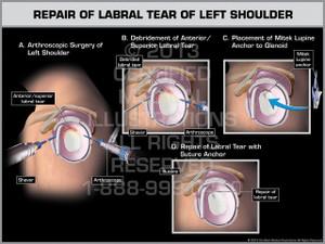 Exhibit of Repair of Labral Tear of Left Shoulder.