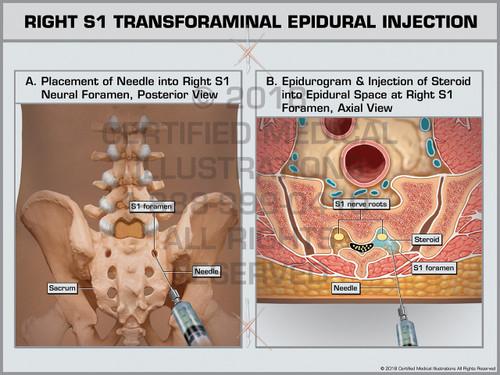 Exhibit of Right S1 Transforaminal Epidural Injection