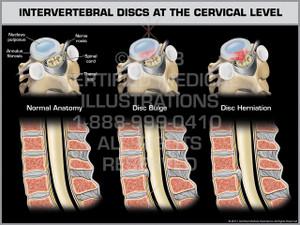 Intervertebral Discs at the Cervical Level