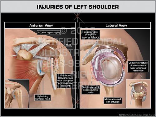 Injuries of Left Shoulder