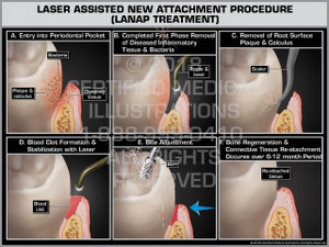 Laser Assisted New Attachment Procedure (LANAP Treatment)