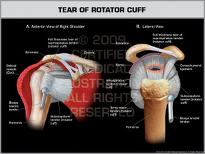 Exhibit of Tear of Rotator Cuff - Right.