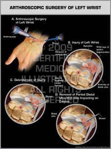 Exhibit of Arthroscopic Surgery of Left Wrist.