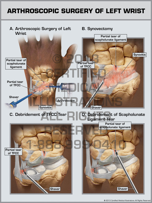 Arthroscopic Surgery Of Left Wrist I