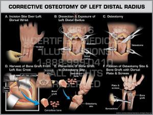 Exhibit of Corrective Osteotomy of Left Distal Radius.