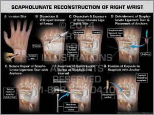 Exhibit of Scapholunate Reconstruction of Right Wrist.