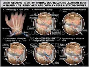 Exhibit of Arthroscopic Repair of Partial Scapholunate Ligament Tear & Triangular Fibrocartilage Complex Tear & Synovectomies.
