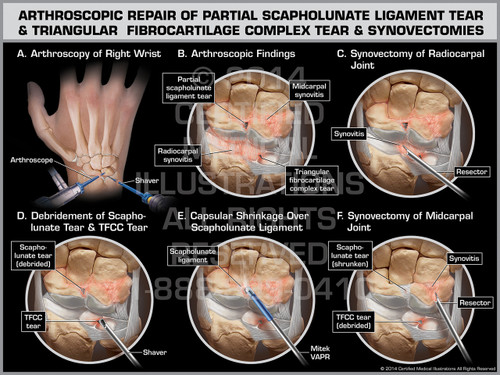 Arthroscopic Repair of Partial Scapholunate Ligament Tear ...