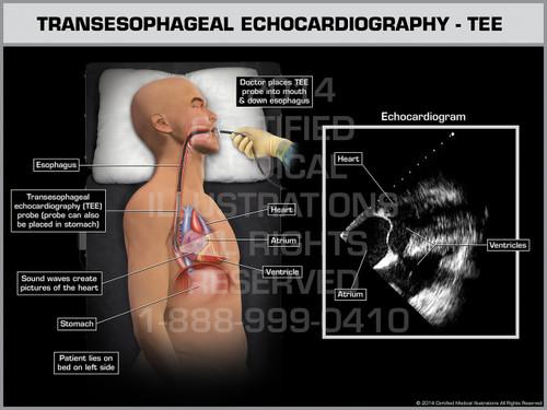 Exhibit of Transesophageal Echocardiography - TEE Male.