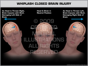 Exhibit of Whiplash Closed Brain Injury Female.