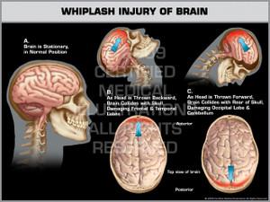 Exhibit of Whiplash Injury of Brain.