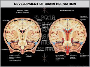 Exhibit of Development of Brain Herniation Coronal Section.
