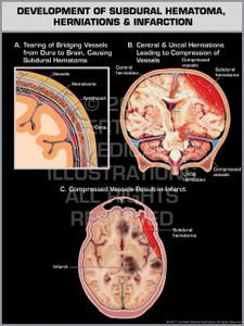 Exhibit of Development of Subdural Hematoma, Herniations & Infarction.