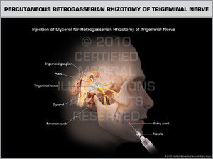 Exhibit of Percutaneous Retrogasserian Rhizotomy of Trigeminal Nerve Male.