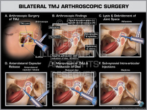 Exhibit of Bilateral TMJ Arthroscopic Surgery.