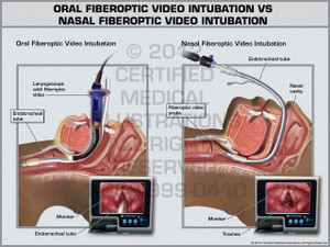 Exhibit of Oral Fiberoptic Video Intubation vs Nasal Fiberoptic Video Intubation.