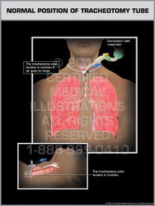 Exhibit of Normal Position of Tracheotomy Tube.