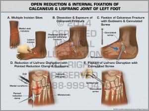 Exhibit of Open Reduction & Internal Fixation of Calcaneus & Lisfranc Joint of Left Foot.