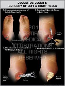 Exhibit of Decubitus Ulcer & Surgery of Left & Right Heels.