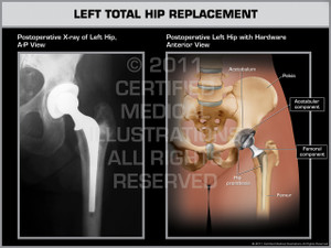 Exhibit of Left Total Hip Replacement.