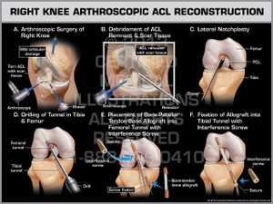 Exhibit of Right Knee Arthroscopic ACL Reconstruction.