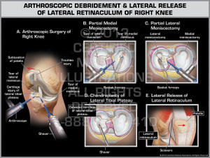 Exhibit of Arthroscopic Debridement & Lateral Release of Lateral Retinaculum of Right Knee.