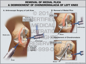 Exhibit of Removal of Medial Plica & Debridement of Chondromalacia of Left Knee.