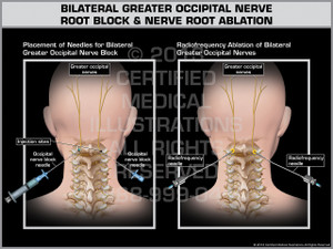 Exhibit of Bilateral Greater Occipital Nerve Root Block & Nerve Root Ablation.