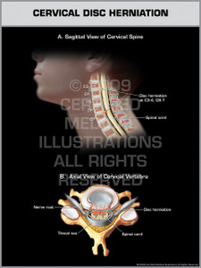 Exhibit of Cervical Disc Herniation.