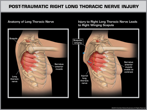 Post-Traumatic Right Long Thoracic Nerve Injury