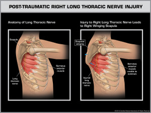 Exhibit of Post-Traumatic Right Long Thoracic Nerve Injury.