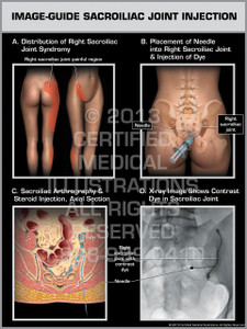 Exhibit of Image-Guide Sacroiliac Joint Injection.