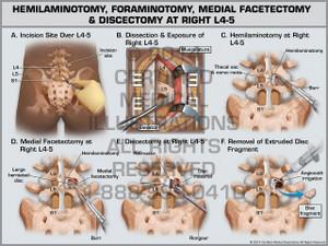 Exhibit of Hemilaminotomy, Foraminotomy, Medial Facetectomy & Discectomy at Right L4-5.