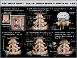 Exhibit of Left Hemilaminotomy, Decompression, & Fusion at L4-S1.