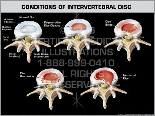 Exhibit of Conditions of Intervertebral Disc.