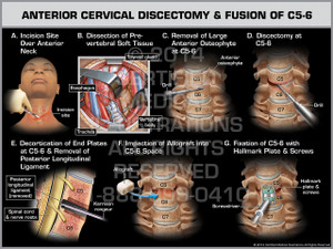 Exhibit of Anterior Cervical Discectomy & Fusion of C5-6 Female.