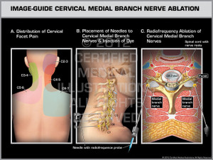 Exhibit of Image-Guide Cervical Medial Branch Nerve Ablation Female.