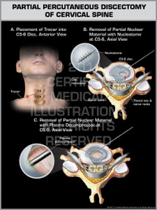 Exhibit of Partial Percutaneous Discectomy of Cervical Spine.