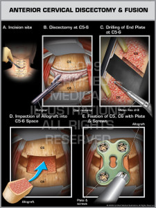 Exhibit of Anterior Cervical Discectomy & Fusion Female.