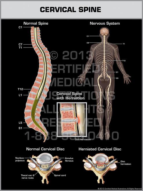 Exhibit of Cervical Spine.