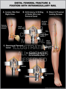 Exhibit of Distal Femoral Fracture & Fixation with Intramedullary Nail.