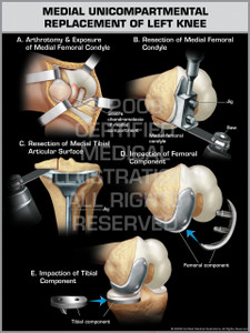 Medial Unicompartmental Replacement of Left Knee