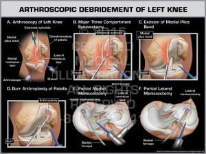 Arthroscopic Debridement of Left Knee