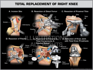 Total Replacement of Right Knee - Print Quality Instant Download