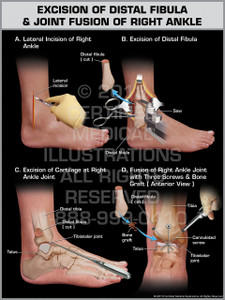 Exhibit of Excision of Distal Fibula & Joint Fusion of Right Ankle.