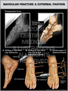 Exhibit of Navicular Fracture & External Fixation.