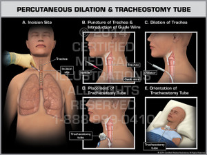 Exhibit of Percutaneous Dilation & Tracheostomy Tube Female.
