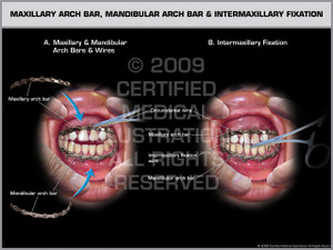 Exhibit of Maxillary Arch Bar, Mandibular Arch Bar and Intermaxillary Fixation.